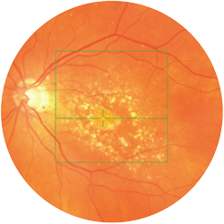 OCT - Ocular Coherence Tomography